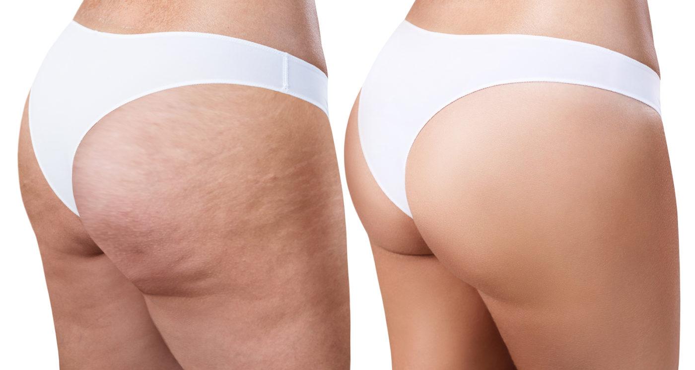 Gluteo y piernas de mujer antes y despues de reducir la celulitis